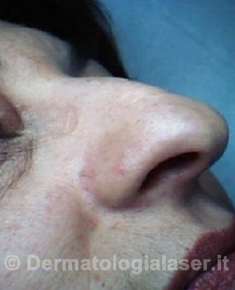 Agiomi rubuni dopo dell'intervento - Dermatologia Salerno - Dott. Ligrone
