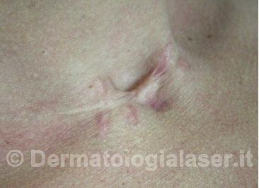Cheloidi Dopo dell'intervento - Dermatologia Salerno - Dott. Ligrone