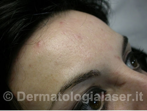 Cicatrici da acne dopo dell'intervento – Dermatologia Salerno – Dott. Ligrone