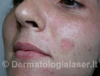 Cicatrici depresse dopo dell'intervento - Dermatologia Salerno - Dott. Ligrone