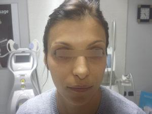 Tossina Botulinica Dopo 1