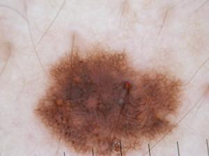 Dermatoscopia nei