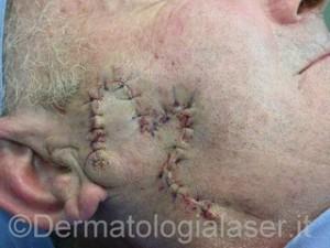 Epitelioma spinocellulare infiltrante dopo intervento