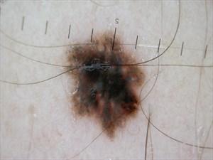 melanoma a diffusione superficiale (2)
