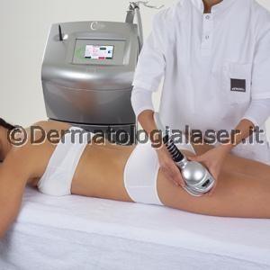 Cavitazione - Dermatologia Laser- Ligrone