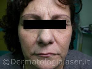 Filler Dermatologia