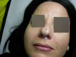 Filler - Correzione naso Prima