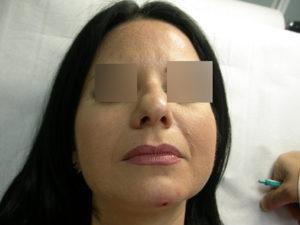 Filler - Correzione naso dopo