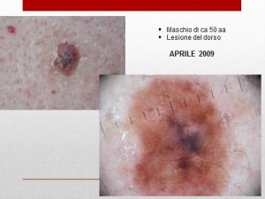 nevo melanoma